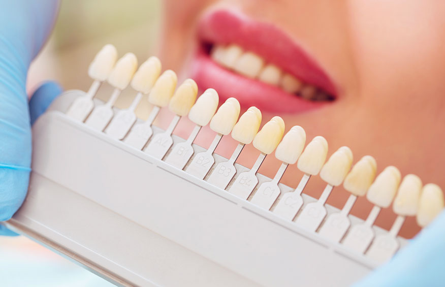 Women checking porcelain veneers