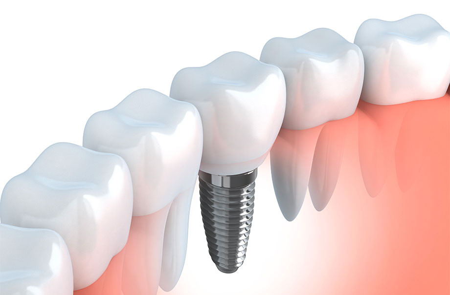 Dental Implants Burlington